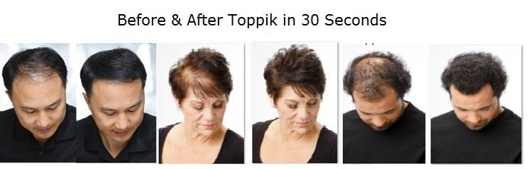Benefits of using Toppik Hair Fibers